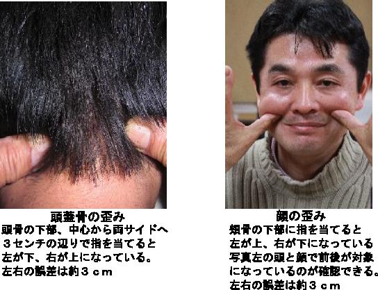 顔と頭蓋骨の歪み