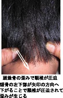 頭骨の歪みと頸椎